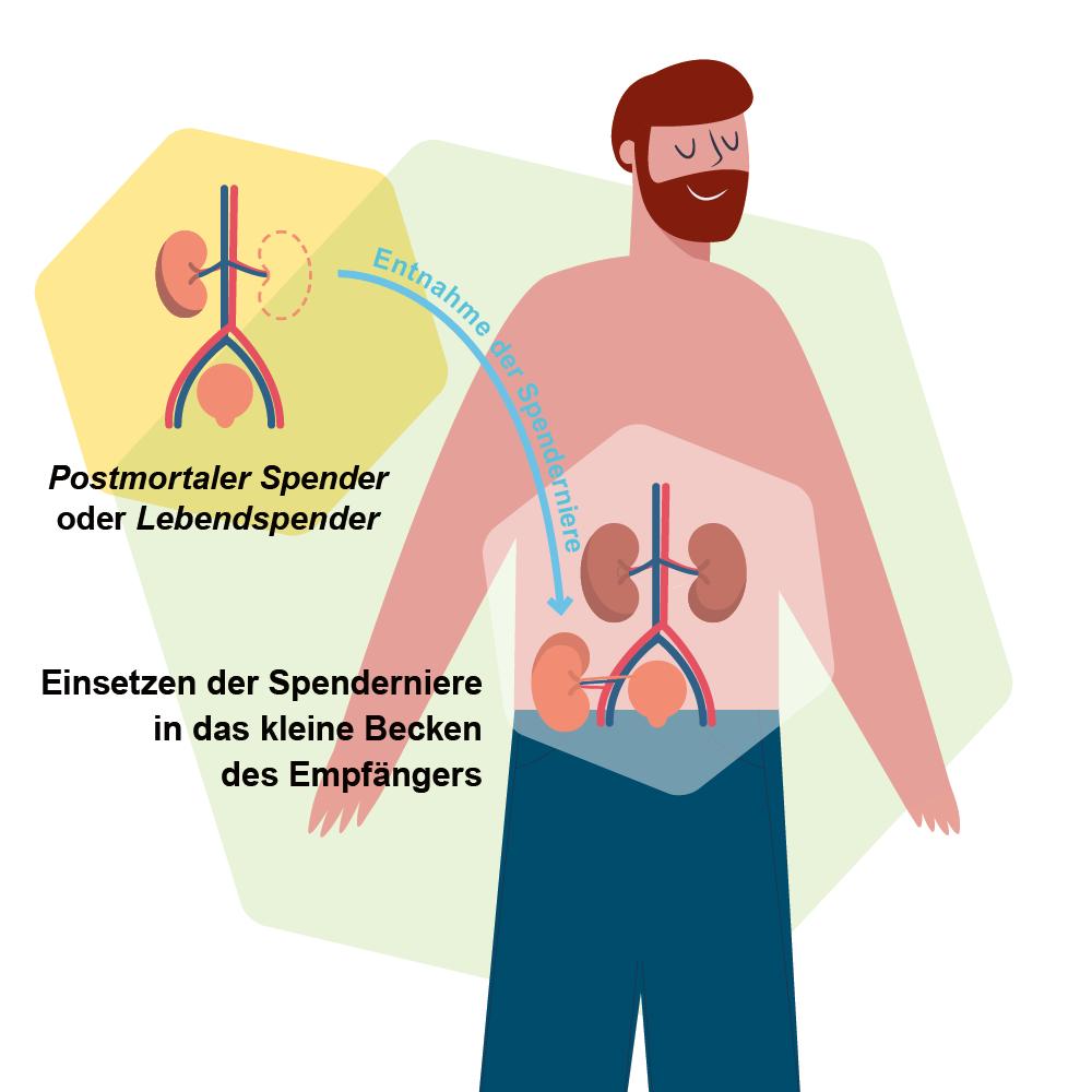 Transplant-Wissen > Vor der Transplantation > Organtransplantation, Nierentransplantation, Lebertransplantation, Durchführung Nierentransplantation, Durchführung Lebertransplantation, Lebendspende, postmortale Spende > Durchlauf einer Nierentransplantation